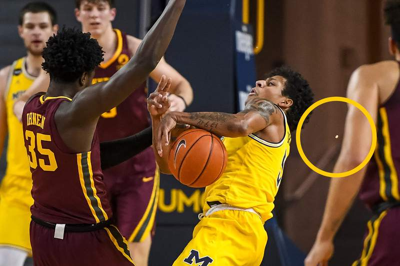 Eli Brooks had a tooth knocked out during Michigan basketball's win over Minnesota on Jan. 6, 2021.