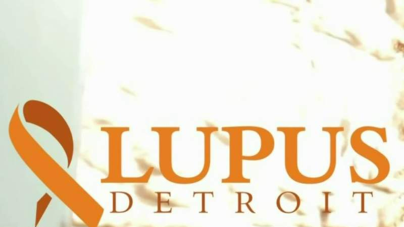 Lupus Detroit looking for applicants for scholarship fund